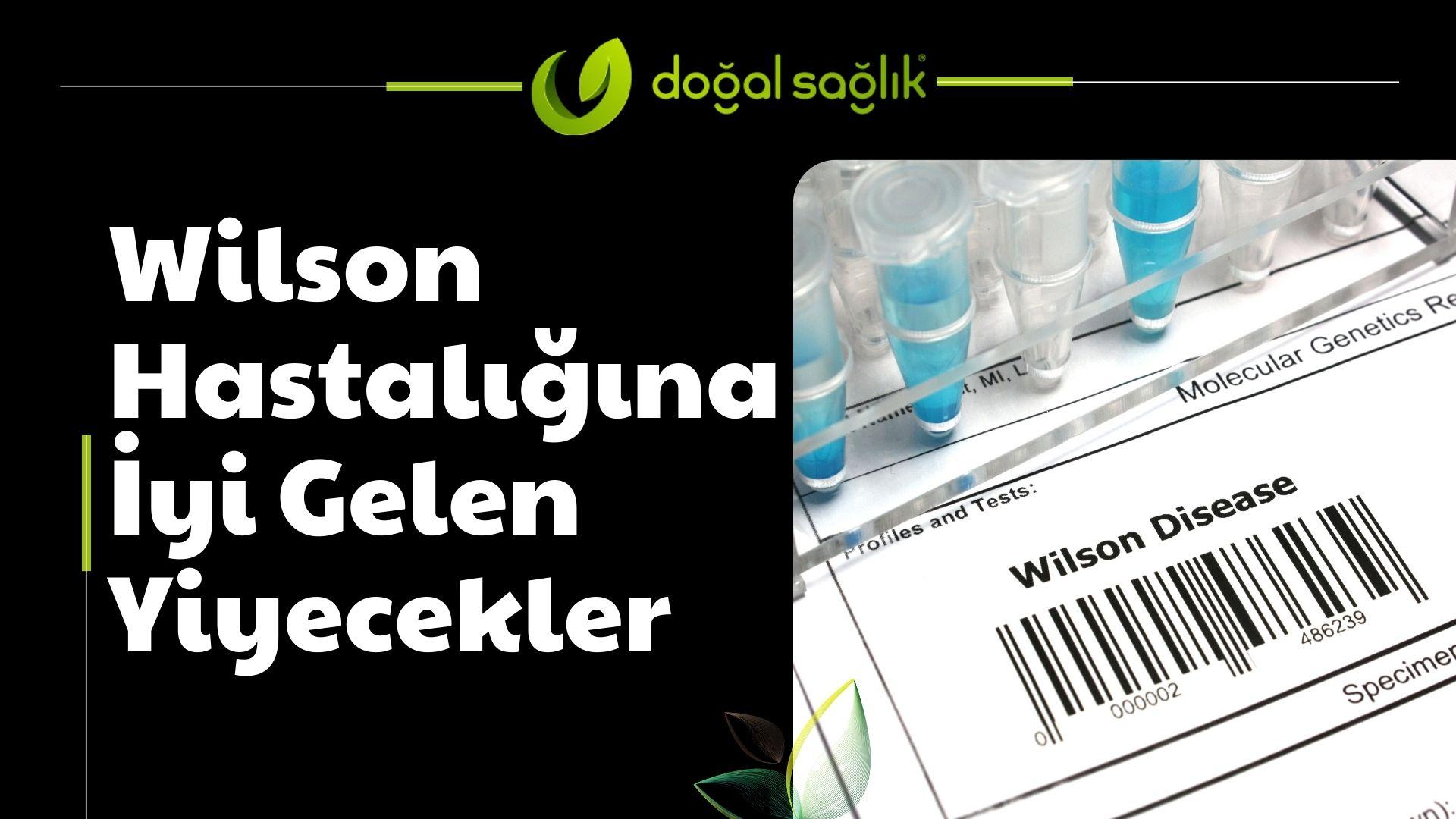 Wilson Hastalığına İyi Gelen Yiyecekler